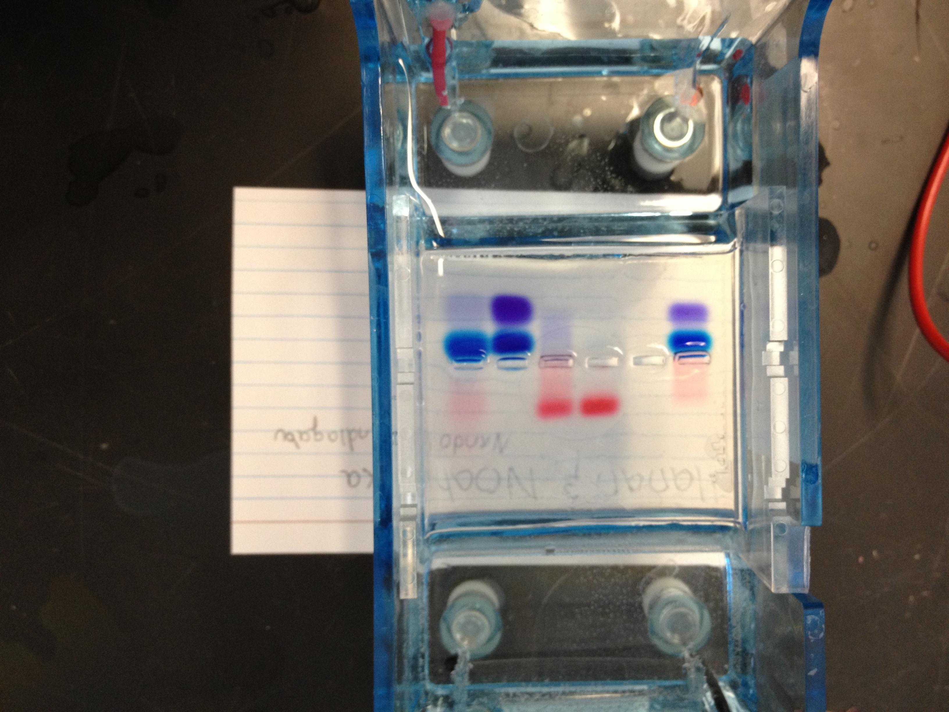 12.5.12 Gel Electrophoresis, Tiny Dots, and Urinalysis | Sligo MS ...